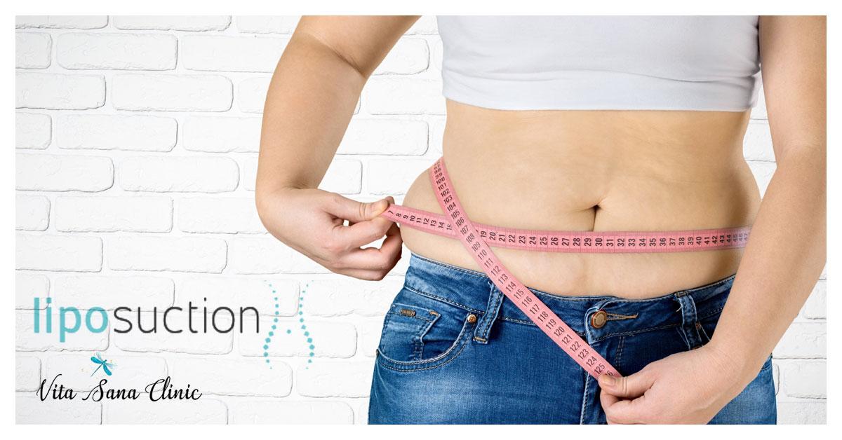 January Specials Liposuction