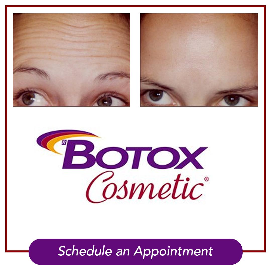 March Botox Special